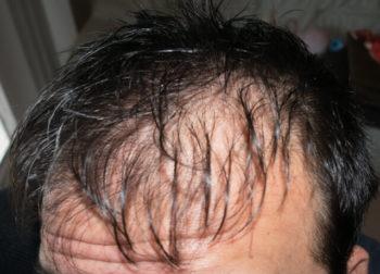 大豆イソフラボン 薄毛 育毛