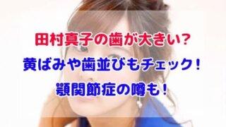 田村真子 歯 大きい 黄ばみ 歯並び